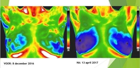 Medische thermografie | Over gezonde borsten
