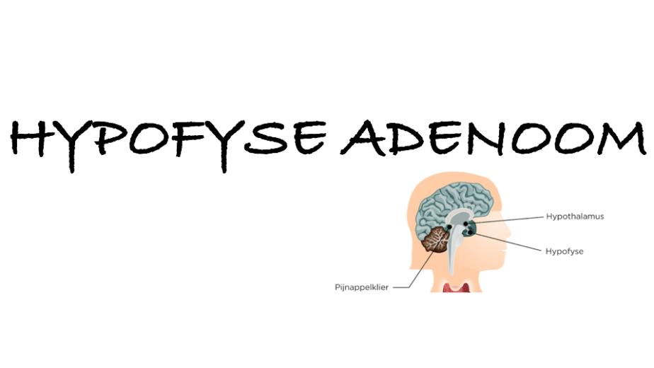 hypofyse adenoom